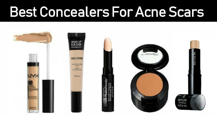 18 Best Concealers To Cover Acne Scars
