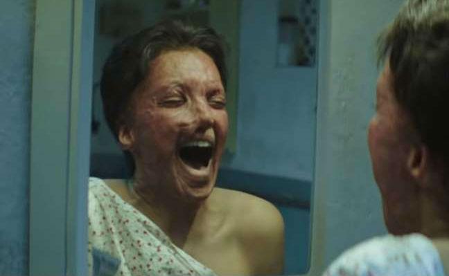 Chhapaak Trailer Release: 'एसिड बिकता नहीं, तो फिकता ही नहीं', रोंगटे खड़े कर देगा दीपिका की 'छपाक' का ट्रेलर
