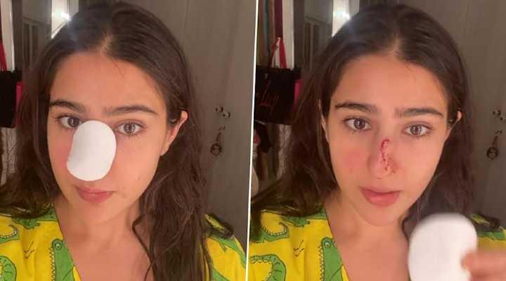 WATCH: Sara Ali Khan says 'naak kaat di maine' as she reveals her injured nose with a 'knock knock' joke